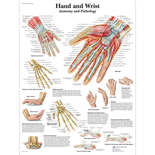 3B Scientific Human Anatomy - Hand and Wrist Anatomy/Pathology Chart, Paper Version from 3B Scientific