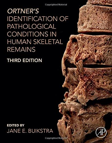 Ortner's Identification of Pathological Conditions in Human Skeletal Remains from Academic Press