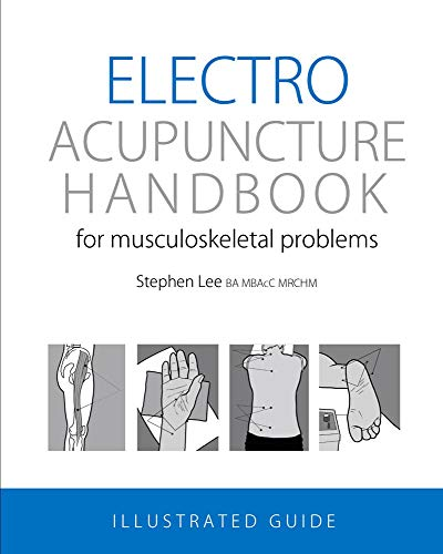 Electroacupuncture Handbook: for musculoskeletal problems from Acuman Books