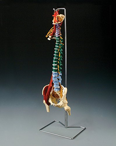 "Anatomical Chart 0000CH5900""Muscle Spine with Disorder"" Skeletal Model, 86.4 cm H from Anatomical Chart"