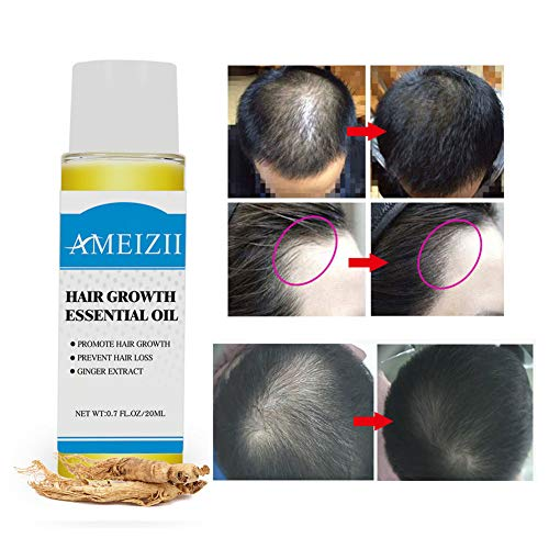 Hair Growth Pure Natural Ginger Essence Hair Growth Liquid Nourish Scalp Hair Anti-Hair Loss Essential, Hair Regrowth, Stop Hair Loss, Best Treatment for Hair Thickening/Thinning Hair 2 PCS (Ginger) from Cocohot