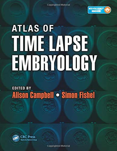 Atlas of Time Lapse Embryology from CRC Press