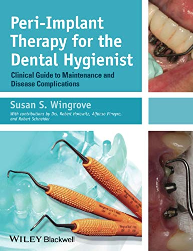 Peri-Implant Therapy for the Dental Hygienist: Clinical Guide to Maintenance and Disease Complications from Wiley-Blackwell